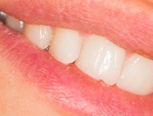 Zahnarzt Domagala Prophylaxe und Zahnpflege